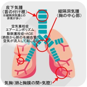 肺の過膨張4種