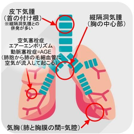 肺活量は自信あります!(肺の傷害)